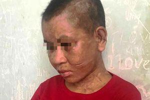 Một phụ nữ nghi bị chủ tra tấn man rợ đến 'thân tàn ma dại'