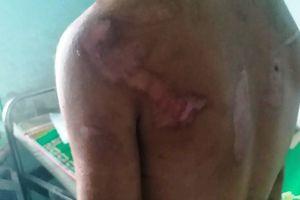 Vụ chủ quán tra tấn người làm thuê ở Gia Lai: Nạn nhân bị đạp sảy thai?