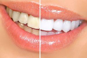 Nụ cười tỏa sáng chỉ nhờ 5 cách làm trắng răng đơn giản tại nhà