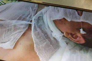 Thái Bình: Tạm giữ nghi phạm tạt axit vào hai người đàn ông