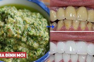 Mẹo đánh bật cao răng đơn giản ngay tại nhà không hề tốn kém