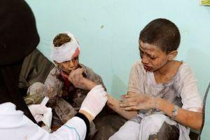 Xe buýt dính đòn thù, '29 trẻ em' thiệt mạng