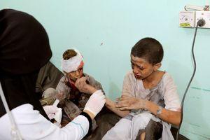 Ít nhất 50 người thiệt mạng trong vụ không kích tại Yemen