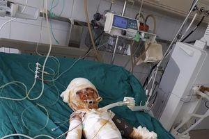 Thảm cảnh gia đình 3 người: Con hôn mê, mẹ bất tỉnh, bố bỏng tuột da chân do can xăng phát nổ