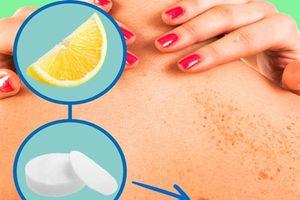 8 phương pháp tự nhiên điều trị đốm đen, xóa mờ thâm nám giúp da lấy lại vẻ trắng mịn cực nhanh