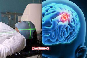 Bị u não - bệnh nhân sống được bao lâu?