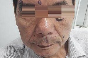 Phát hiện ung thư từ những chấm 'lạ' trên mặt