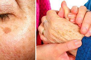 Bài thuốc tại nhà: Cách trị đốm đen trên da hiệu quả