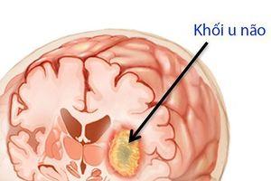 Thấy chóng mặt, buồn nôn, bé 11 tuổi bị u não diễn biến cực nhanh