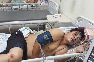 Thái Nguyên: Tai nạn liên hoàn, 4 người bị thương nặng