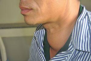 Bác sỹ hút hơn cả lít dịch trong khối u tuyến giáp của bệnh nhân