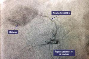 Trị ung thư gan nhờ 'khóa' mạch máu nuôi khối u ác tính