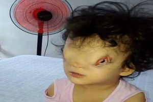 Xót xa số phận của bé gái 4 tuổi mang khuôn mặt dị dạng