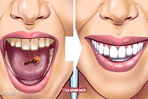 11 cách loại bỏ vết ố, mảng bám trên răng, hôi miệng cỡ mấy cũng thơm tho ngay lập tức