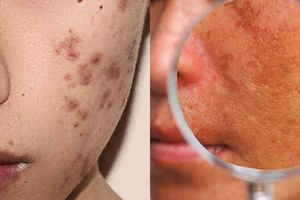 Ngoài nám còn có 2 loại tăng hắc sắc tố da này, là phụ nữ nhất định phải biết