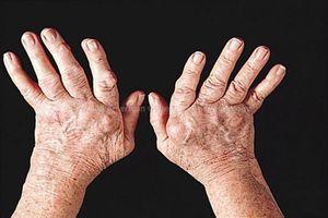 3 bài thuốc quý hỗ trợ điều trị viêm khớp dạng thấp
