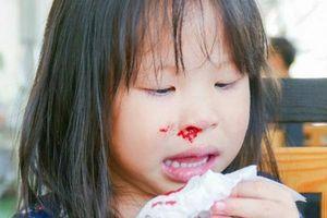 Một số lưu ý quan trọng khi trẻ bị chảy máu cam