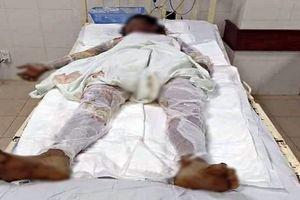 Chồng can ngăn vợ đổ xăng lên người tự tử, 3 người trong gia đình bị bỏng nặng