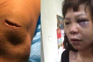 Khởi tố, bắt tạm giam kẻ lừa vợ lên đồi đánh đập, cắt gân ở Quảng Ninh