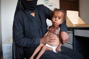 'Quá yếu để khóc', 5 triệu trẻ em Yemen bị nạn đói đe dọa