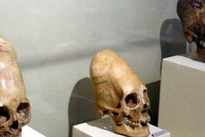 Giải mã sốc về hộp sọ bí ẩn của người ngoài hành tinh