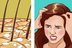 Ủ hay gội bằng các nguyên liệu này, trị dứt điểm gàu và ngứa da đầu giúp tóc suôn mượt, óng ả