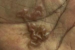Phát hoảng vì ấu trùng 'đào hầm' trong lòng bàn tay