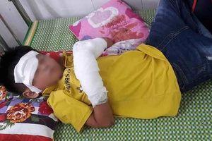 Điện thoại bất ngờ phát nổ, bé trai 7 tuổi dập nát 2 bàn tay