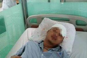 Thái Bình: Bị đánh trọng thương sau khi đến công ty đòi tiền lương