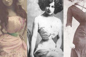 Lý do người đàn bà Pháp có eo nhỏ 40cm bị chê xấu nhất thế giới