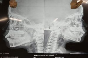 Trót dại dùng kim băng lấy gỉ mũi, bé 10 tuổi khiến bố mẹ phát hoảng