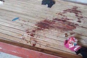 Hé lộ nguyên nhân bé gái 10 tuổi bị cứa cổ tử vong