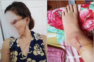 Vụ chồng 'hờ' rạch mặt vợ dã man ở Bắc Giang: Đã có kết quả giám định lần 2