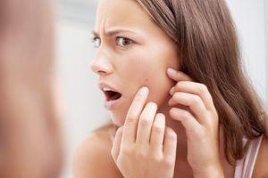 Không ngờ những nguyên nhân đơn giản này khiến da nổi mụn