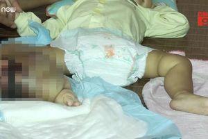 Mẹ khóc nghẹn nhìn con 14 tháng tuổi bị khối u quái ác hành hạ