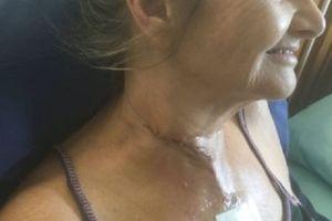 Đi câu cá cùng chồng, người phụ nữ bị con mồi dài 1m phi lên cắt đứt cổ