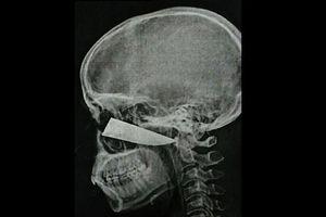 Cứu sống chàng trai bị lưỡi dao đâm sâu 10 cm vào mặt
