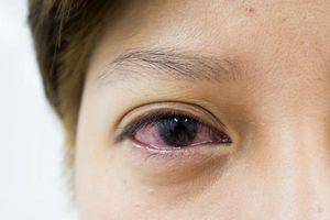 6 lý do khiến đôi mắt chảy nước liên tục