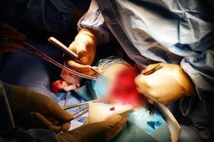 Phẫu thuật thành công cho bệnh nhân bị gãy hở hai xương cẳng chân, trong tình trạng không thể truyền máu
