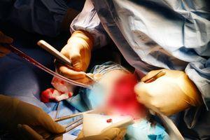 Phẫu thuật cho nữ bệnh nhân gãy chân không thể truyền máu từ người khác