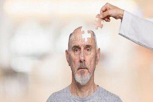Nguyên tắc đơn giản để phòng bệnh mất trí nhớ và Alzheimer ở người già