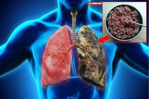 Nhịn ăn, chỉ ăn gạo lứt, muối mè có chữa được ung thư phổi hay không?