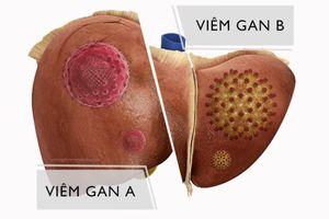 Tất tần tật về viêm gan B – Phòng tránh & cách điều trị