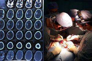 3 giờ mở sọ, cứu sống bệnh nhân 44 tuổi nghiện rượu, xuất huyết não nguy kịch