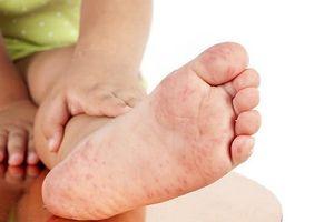Chuyên gia dịch tễ lý giải vì sao dịch tay chân miệng đang tăng bất thường