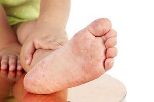 TP.HCM: Học sinh có dấu hiệu bệnh tay chân miệng không nên đến trường