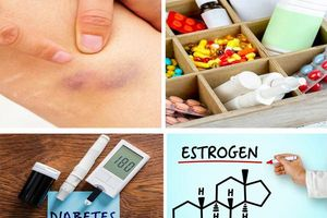 Vết bầm tím đột nhiên xuất hiện trên da 'tố' bệnh gì?