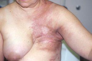 Nguy hiểm: Ngay cả phụ nữ Thủ đô cũng tin lời 'Thầy lang' tự đắp lá thuốc chữa ung thư vú