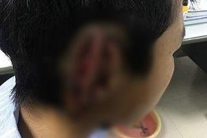Nghệ An: Cắn đứt tai bạn rồi nuốt chửng vào bụng