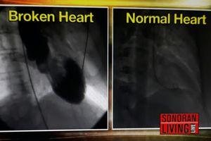 Hội chứng 'trái tim vỡ': Tổn thương tim do stress